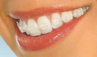 Вирівнювання зубів і виправлення прикусу - де поставити брекети в Києві?