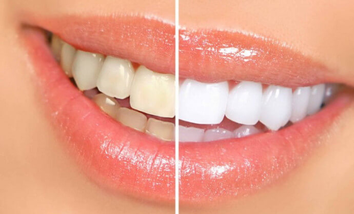 Как и зачем  проводят реставрацию зубов