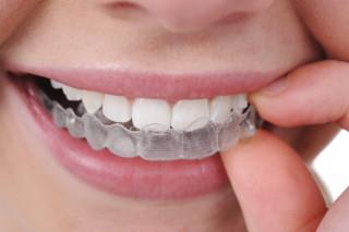 Глибока флюоризація емалі зубів