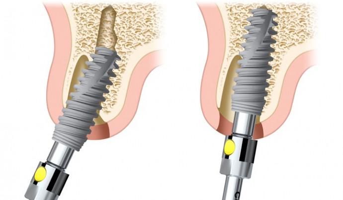 Устанавливаем зубные импланты в Киеве