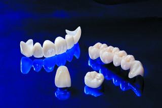 Що таке керамічні зубні коронки