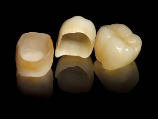 Зубні коронки та їх види