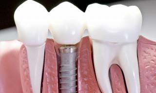 Протезування зубів - основні види