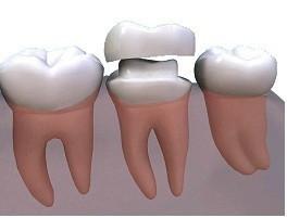 Поставити коронку: керамічні коронки та зубні коронки