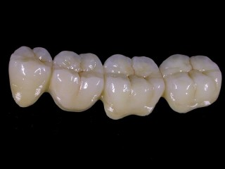 Лікування і протезування зубів у Києві