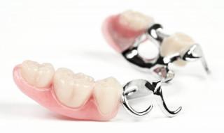 Протезування зубів в Києві, види протезування
